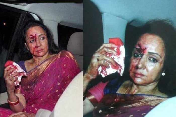 Hema Malini car accident in Rajasthan child dead driver arrested