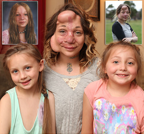 South-Dakota-Mother-Living-With-Balloons-Under-Her-Skin-Before-Life-Changing-Surgery