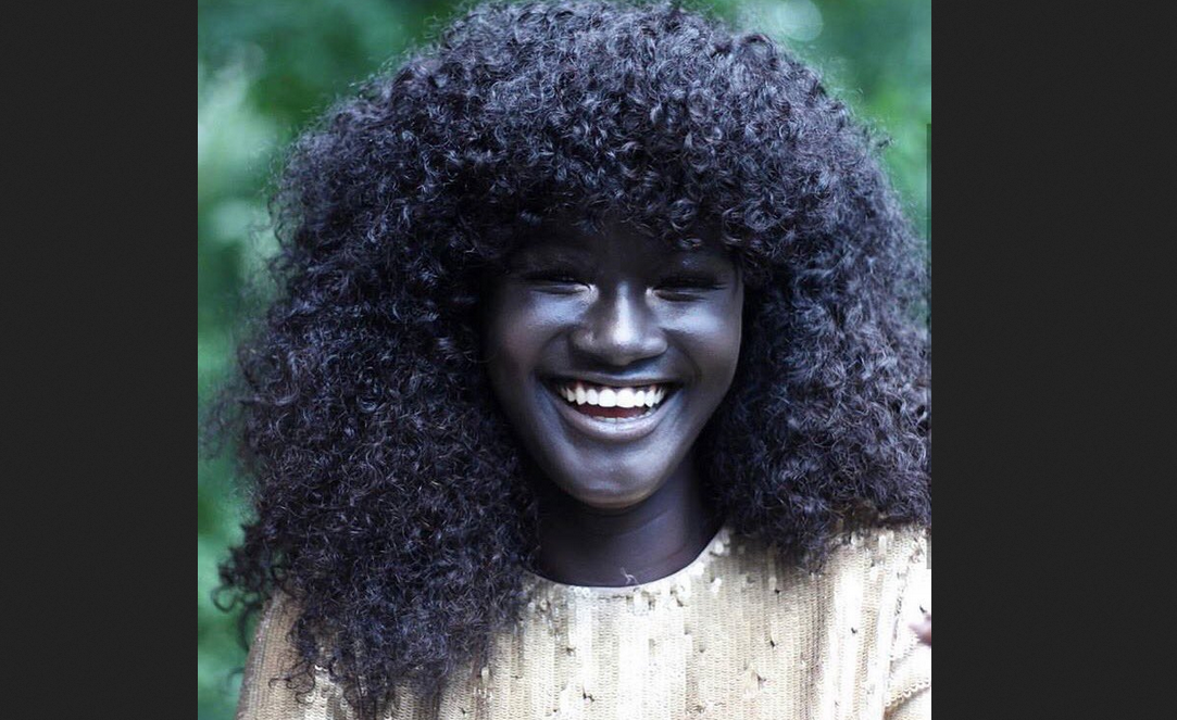 Meet 'World's Darkest Model' Breaking the Internet