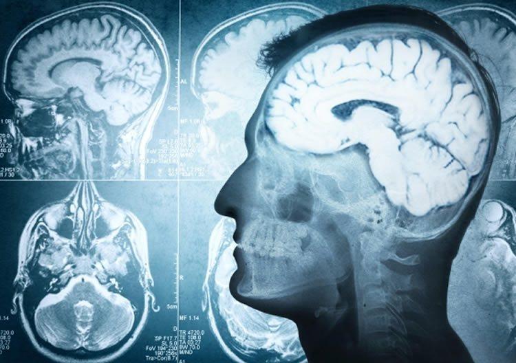 tlr-neurology-parkinsons-neurosciencneews